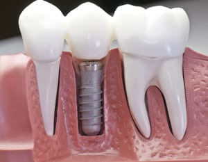 Dental Impants for Missing Damaged Teeth