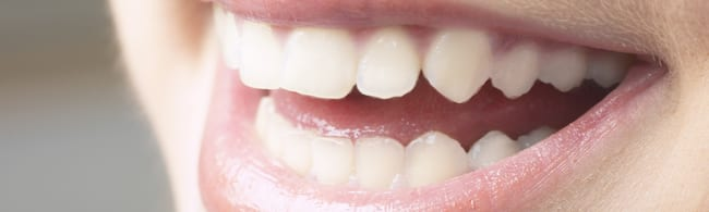 Teeth Whitening Enamel Bleaching