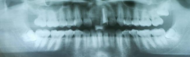 Dental X-Rays & Radiographs